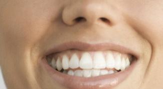 Как отбелить зубы самостоятельно